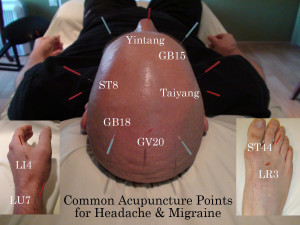 Headache Acupuncture Points